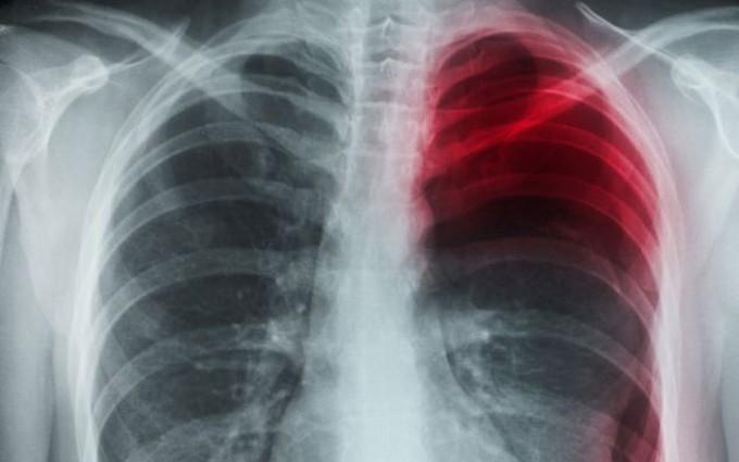 Ung thư buồng trứng di căn phổi và phương pháp điều trị