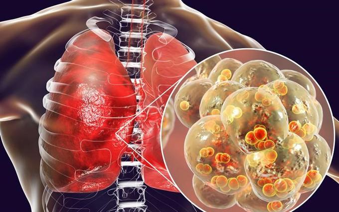 Dấu hiệu nhận biết viêm phổi khi trời lạnh