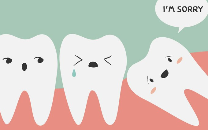 Triệu chứng mọc răng khôn và lời khuyên của bác sĩ