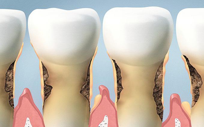 Không đánh răng có tác hại gì? 6 vấn đề sức khỏe từ thói quen nguy hiểm này