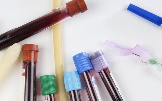 Những điều cần biết về xét nghiệm enzyme gan