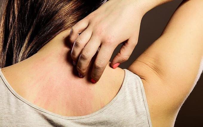 Những tác hại nguy hiểm khi cơ thể mất cân bằng điện giải