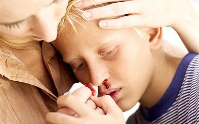 Bệnh bạch cầu mãn tính là gì và phân loại bạch cầu mãn tính