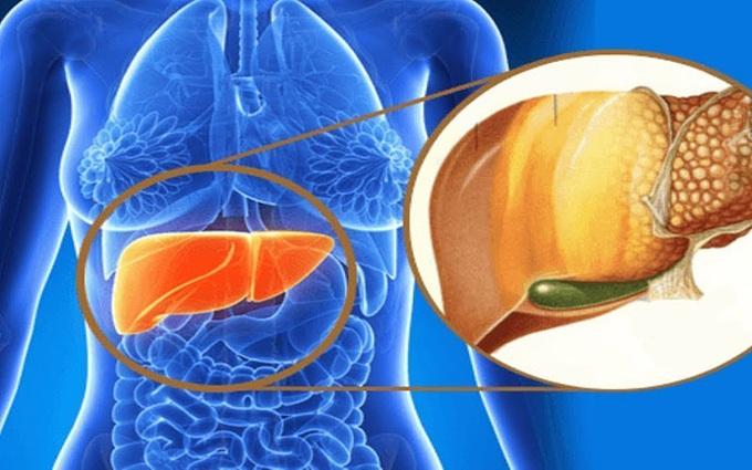 Tìm hiểu nguyên nhân gây gan nhiễm mỡ do ăn uống