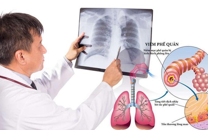 Hen phế quản là gì: Nguyên nhân, dấu hiệu, phương pháp điều trị