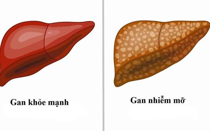 Gan nhiễm mỡ có nguy hiểm không? Nguyên nhân gây gan nhiễm mỡ