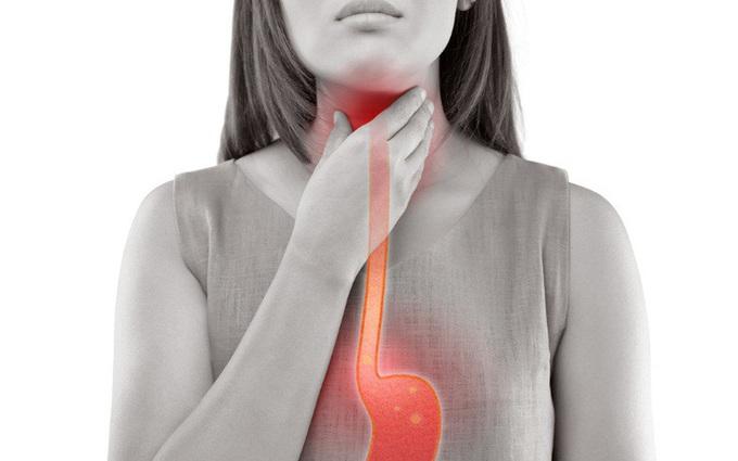 Thuốc trị trào ngược dạ dày thực quản gồm những loại nào?