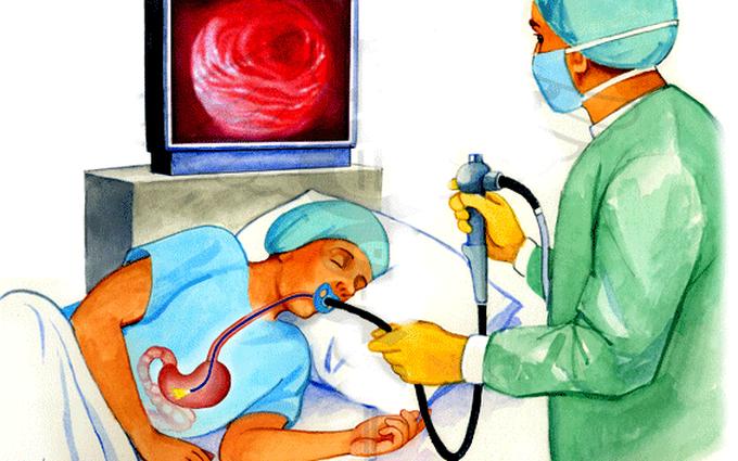 Tìm hiểu về phương pháp nội soi dạ dày: Quy trình thực hiện và những lưu ý trước khi nội soi