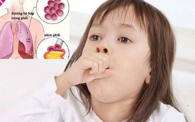 Chăm sóc bé bị viêm phổi như thế nào để nhanh khỏi bệnh?
