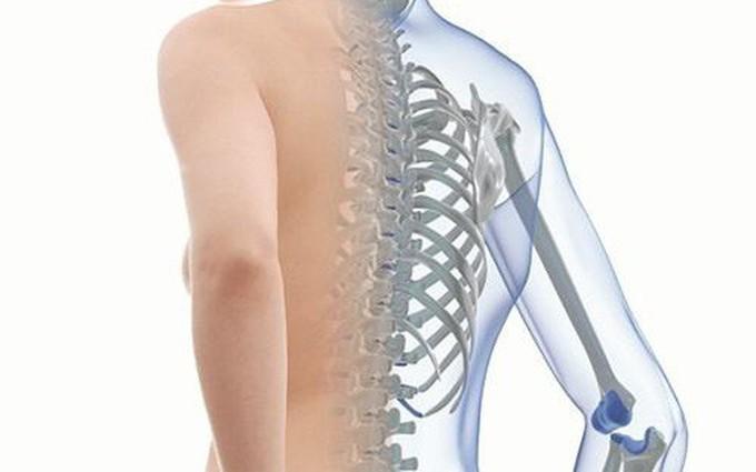 Image result for bệnh loãng xương