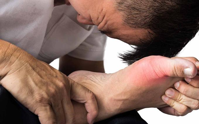 Người bị bệnh cần chú ý gì để sống chung với gout?