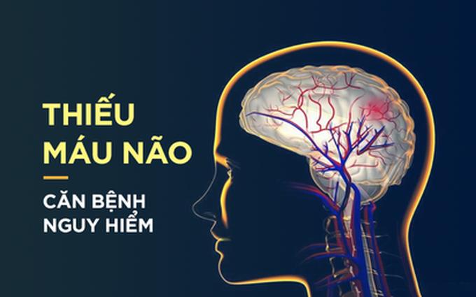 Dấu hiệu điển hình của bệnh thiếu máu não: Hãy cảnh giác sớm để tránh bị đột quỵ bất ngờ