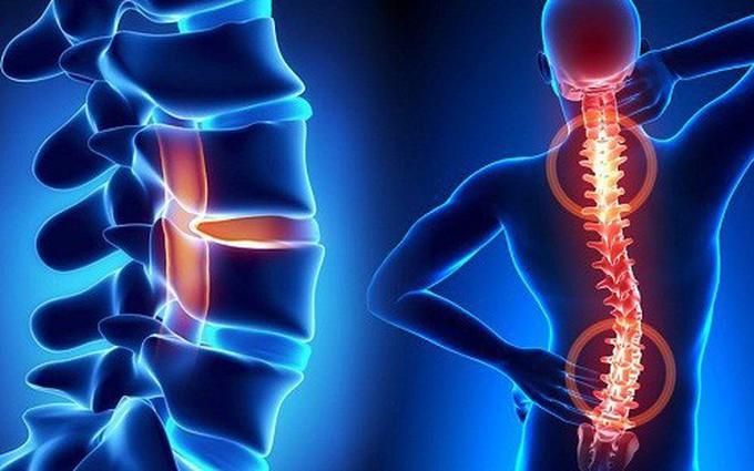 Các cơn đau trong thoái hóa cột sống và một số dấu hiệu sớm