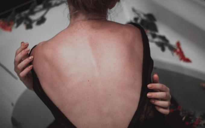 Nguyên nhân gây ra các cơn đau cong vẹo cột sống
