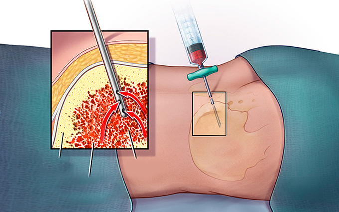Ý nghĩa của sinh thiết tủy xương trong tầm soát ung thư xương