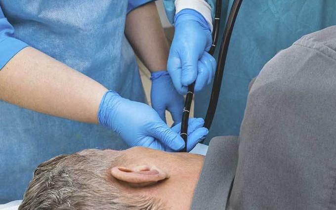 Điều trị ung thư thực quản bằng phương pháp nội soi