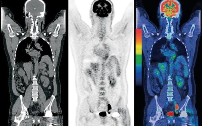 Chụp PET/CT phát hiện sớm ung thư - có cần thiết như mọi người vẫn nghĩ?