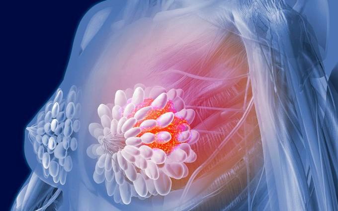 Mối liên hệ giữa tiểu đường và ung thư vú