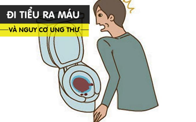 Tiểu ra máu - dấu hiệu cảnh báo sớm của hàng loạt căn bệnh nguy hiểm