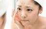 Điểm nhanh 3 thói quen khiến da mặt xuất hiện vết thâm và sẹo mụn